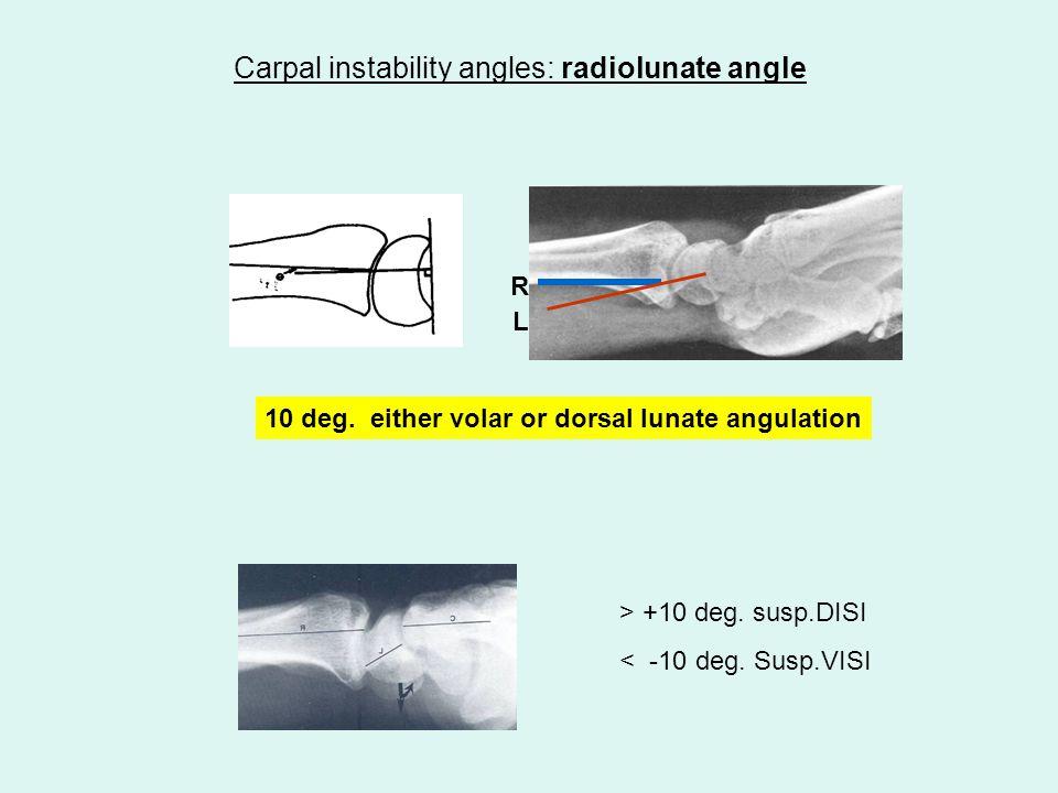Carpal instability angles: radiolunate angle 10 deg.