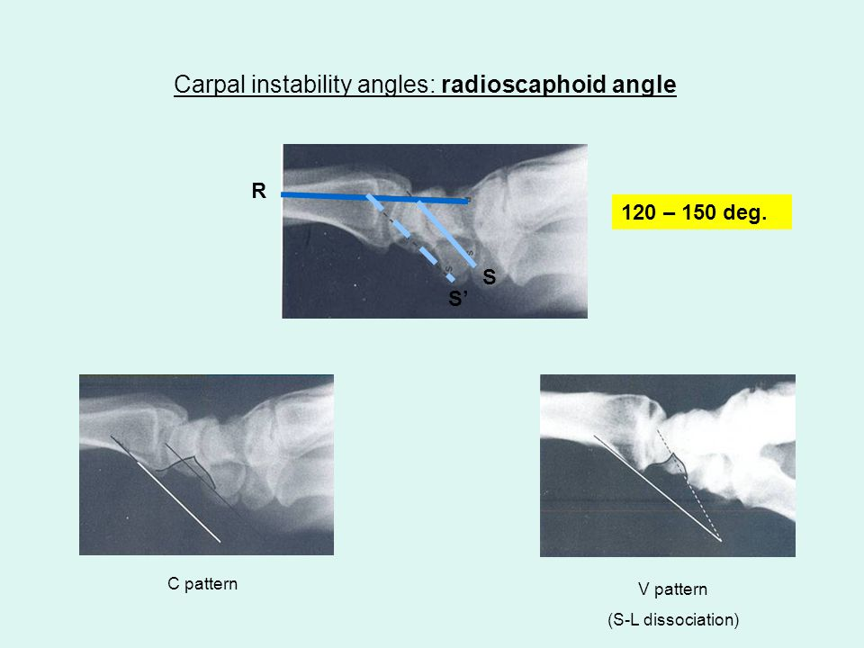 Carpal instability angles: radioscaphoid angle 120 – 150 deg. C pattern V pattern (S-L dissociation) R S S'