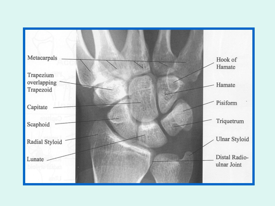 Routine wrist radiography PALATOBLIQUE OBLIQUE SUPINE כף היד צ ל שטוחה על הקסטה