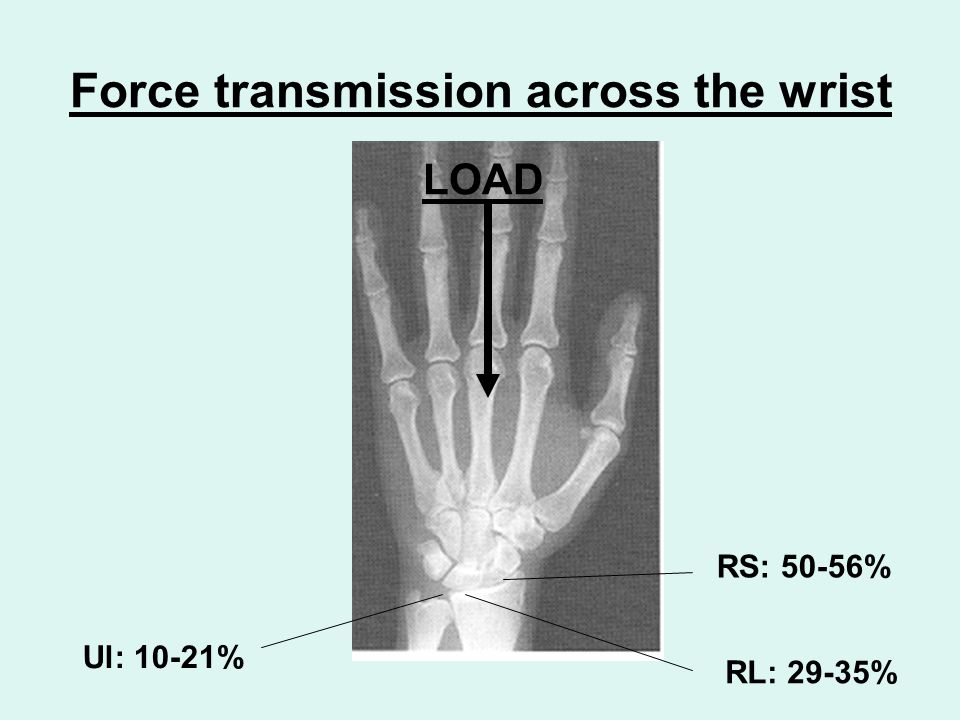 Force transmission across the wrist RS: 50-56% LOAD RL: 29-35% Ul: 10-21%