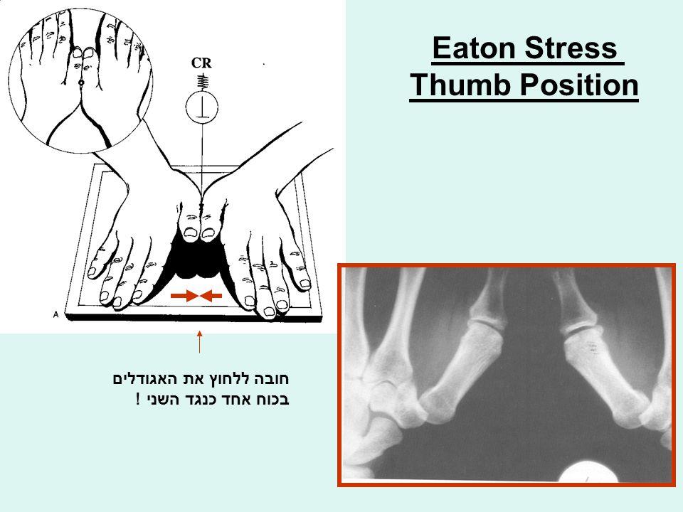 Eaton Stress Thumb Position חובה ללחוץ את האגודלים בכוח אחד כנגד השני !