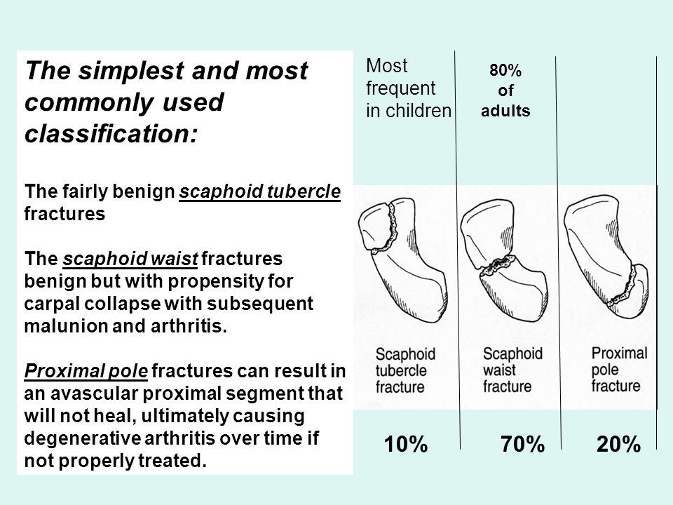The simplest and most commonly used classification: The fairly benign scaphoid tubercle fractures The scaphoid waist fractures benign but with propens
