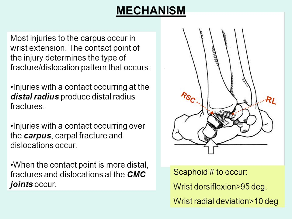 RSC RL Most injuries to the carpus occur in wrist extension. The contact point of the injury determines the type of fracture/dislocation pattern that