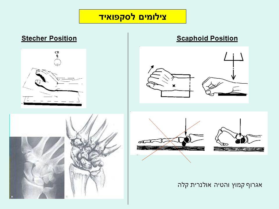 צילומים לסקפואיד Stecher Position אגרוף קמוץ והטיה אולנרית קלה Scaphoid Position