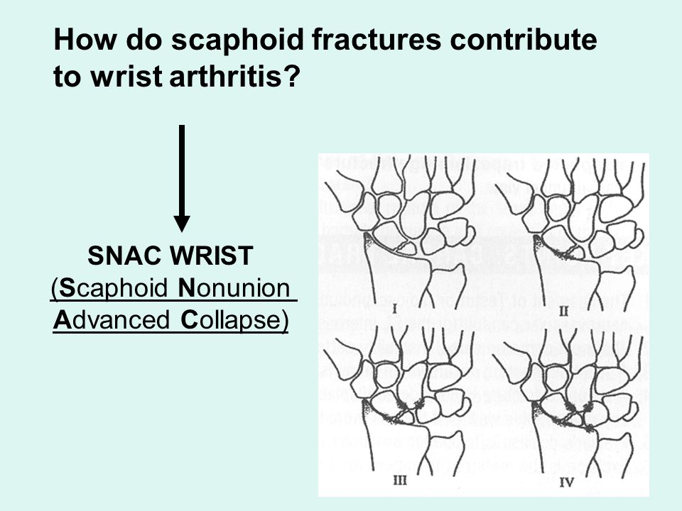 SNAC WRIST (Scaphoid Nonunion Advanced Collapse) How do scaphoid fractures contribute to wrist arthritis?