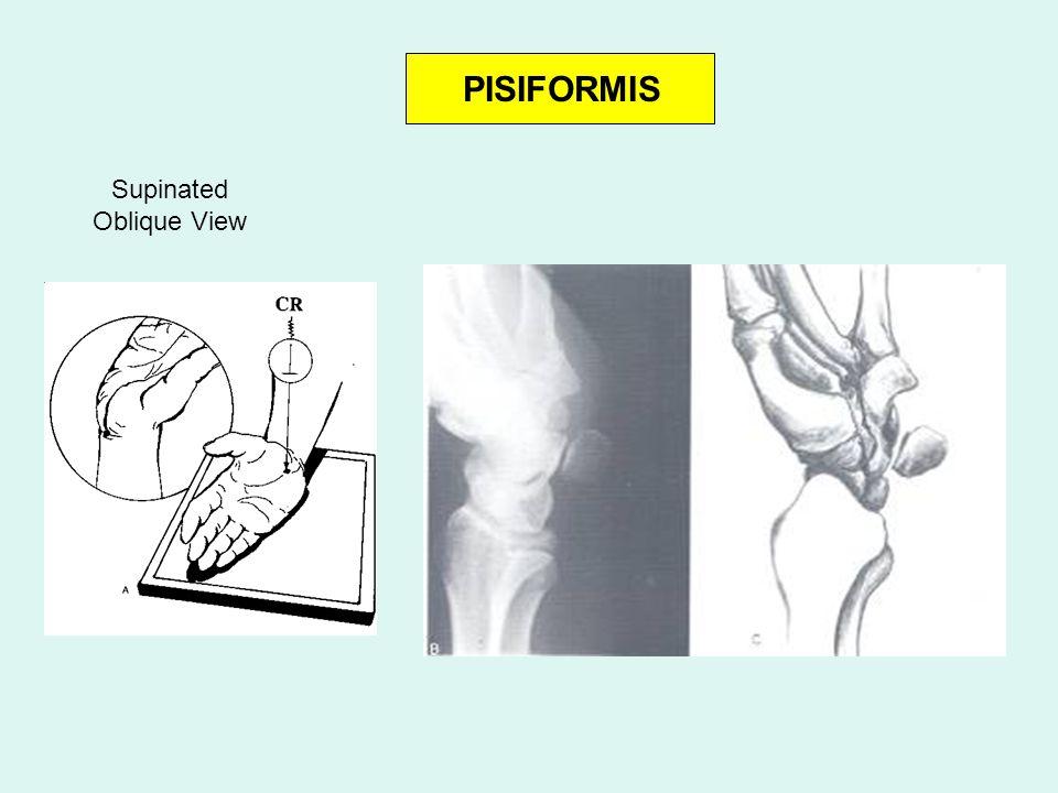 PISIFORMIS Supinated Oblique View