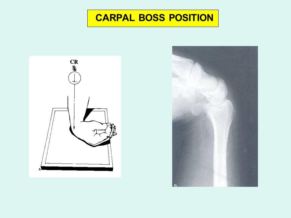 CARPAL BOSS POSITION
