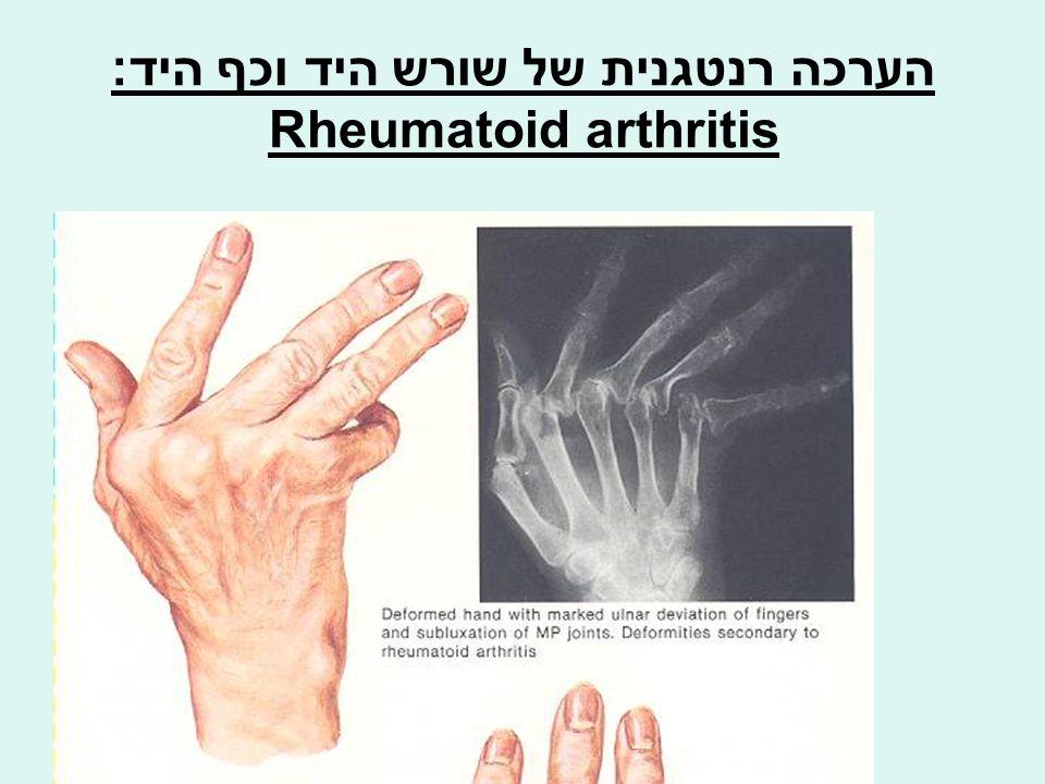 הערכה רנטגנית של שורש היד וכף היד: Rheumatoid arthritis