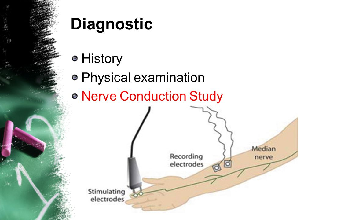 Diagnostic History Physical examination Nerve Conduction Study