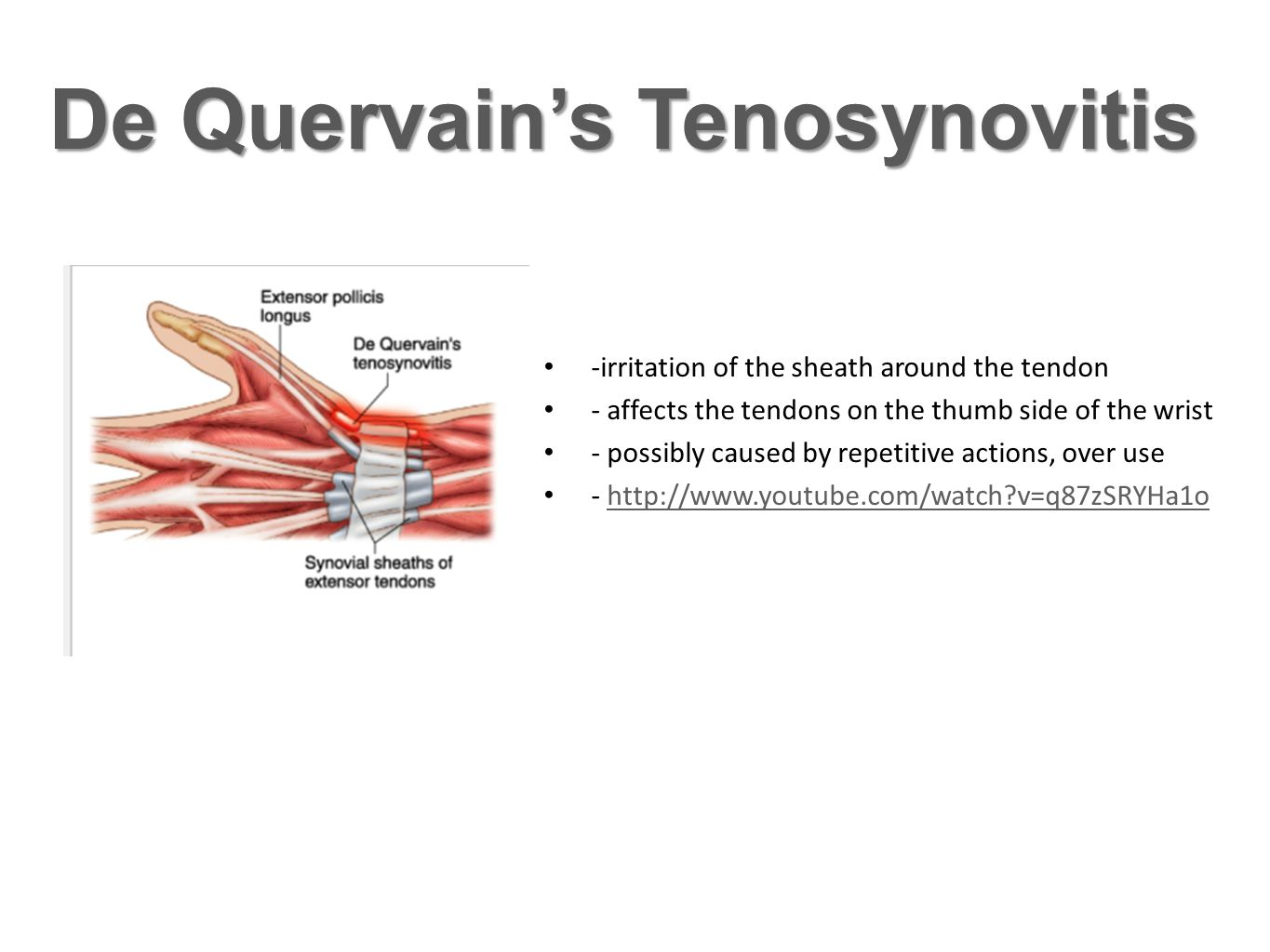 Clinical Concerns Carpal tunnelGanglion cyst -The transverse carpal ligament in the wrist puts pressure on the medial nerve -- possible cause: overuse, hormonal -http://www.youtube.com/watch?v=SGyKQc hSEJ4http://www.youtube.com/watch?v=SGyKQc hSEJ4 -Is a fluid filled cyst that develops out of a joint.