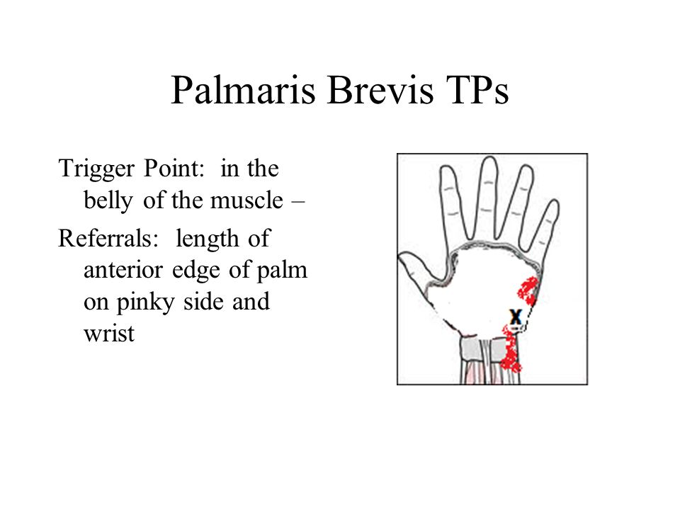 Palmaris Brevis TPs Trigger Point: in the belly of the muscle – Referrals: length of anterior edge of palm on pinky side and wrist