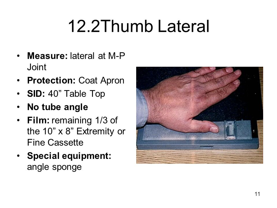 """11 12.2Thumb Lateral Measure: lateral at M-P Joint Protection: Coat Apron SID: 40"""" Table Top No tube angle Film: remaining 1/3 of the 10"""" x 8"""" Extremi"""