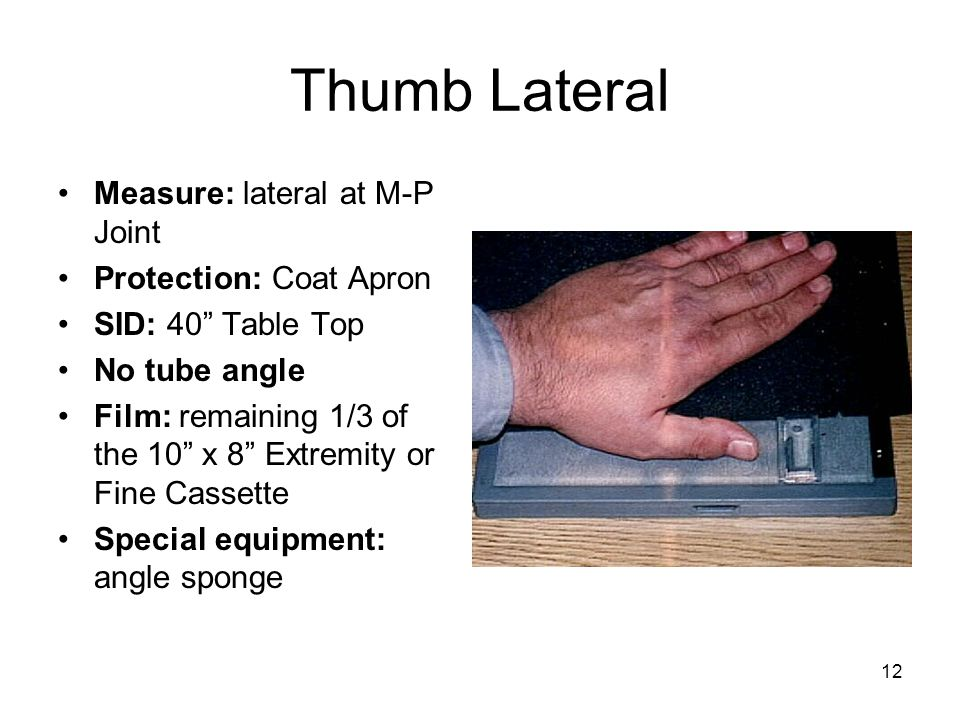 """12 Thumb Lateral Measure: lateral at M-P Joint Protection: Coat Apron SID: 40"""" Table Top No tube angle Film: remaining 1/3 of the 10"""" x 8"""" Extremity o"""
