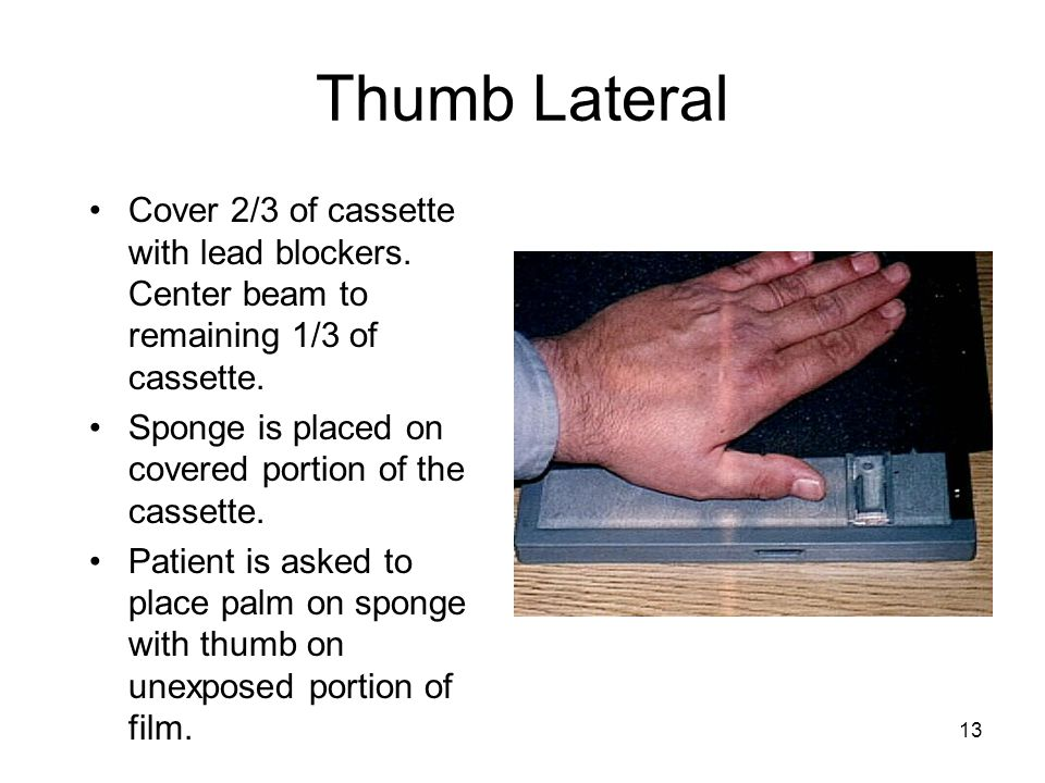13 Thumb Lateral Cover 2/3 of cassette with lead blockers. Center beam to remaining 1/3 of cassette. Sponge is placed on covered portion of the casset