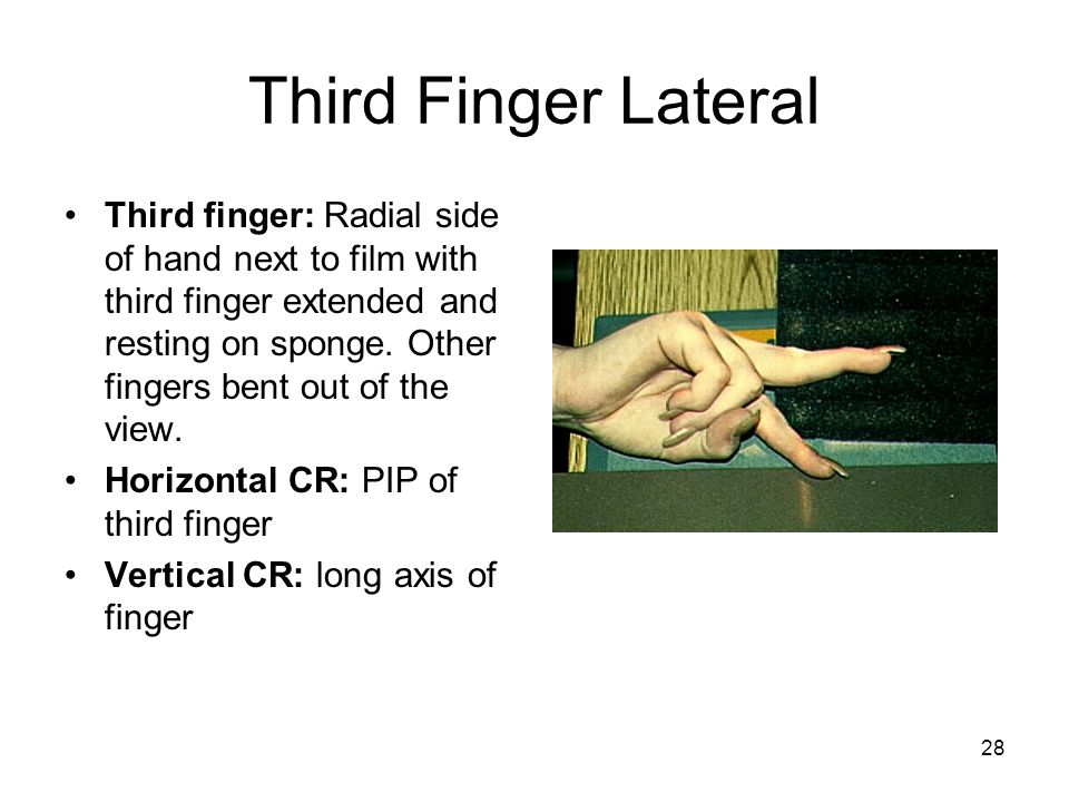 28 Third Finger Lateral Third finger: Radial side of hand next to film with third finger extended and resting on sponge. Other fingers bent out of the