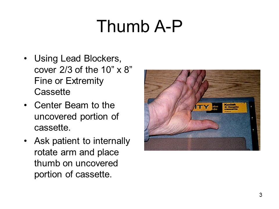 """3 Thumb A-P Using Lead Blockers, cover 2/3 of the 10"""" x 8"""" Fine or Extremity Cassette Center Beam to the uncovered portion of cassette. Ask patient to"""