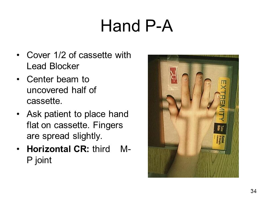 34 Hand P-A Cover 1/2 of cassette with Lead Blocker Center beam to uncovered half of cassette. Ask patient to place hand flat on cassette. Fingers are