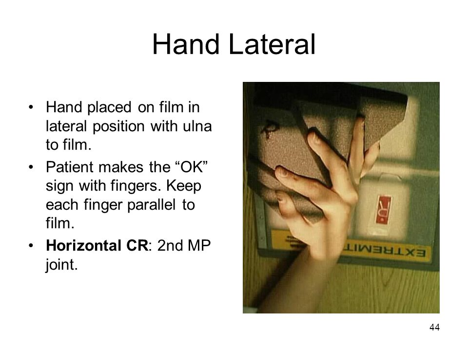 """44 Hand Lateral Hand placed on film in lateral position with ulna to film. Patient makes the """"OK"""" sign with fingers. Keep each finger parallel to film"""