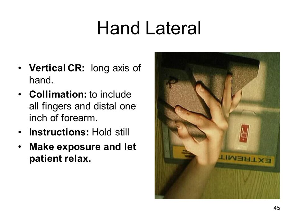 45 Hand Lateral Vertical CR: long axis of hand. Collimation: to include all fingers and distal one inch of forearm. Instructions: Hold still Make expo
