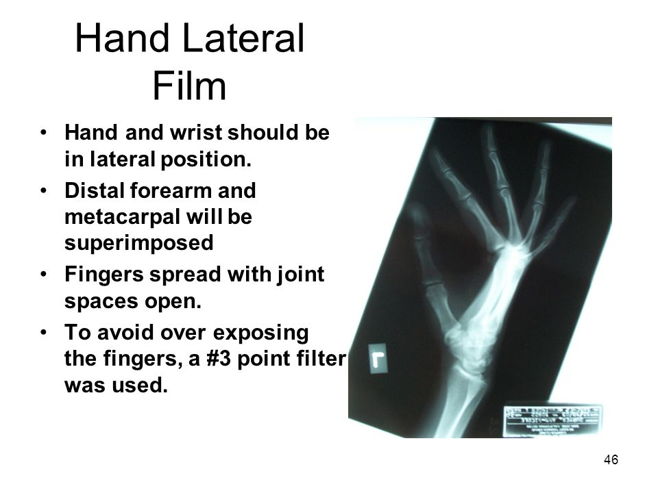 46 Hand Lateral Film Hand and wrist should be in lateral position. Distal forearm and metacarpal will be superimposed Fingers spread with joint spaces