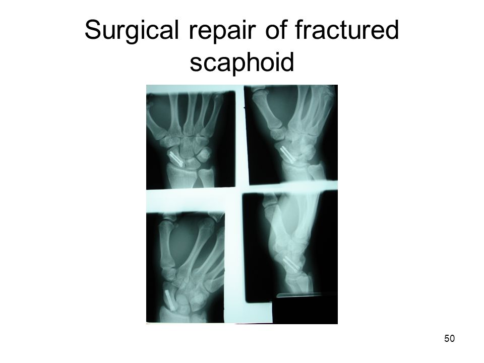 50 Surgical repair of fractured scaphoid