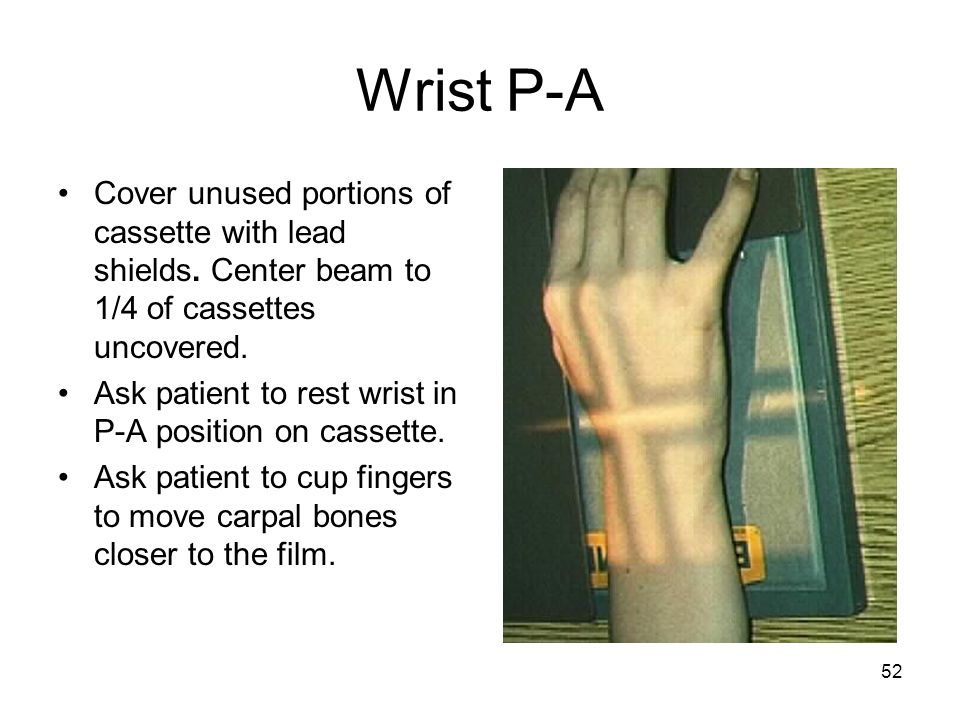 52 Wrist P-A Cover unused portions of cassette with lead shields. Center beam to 1/4 of cassettes uncovered. Ask patient to rest wrist in P-A position