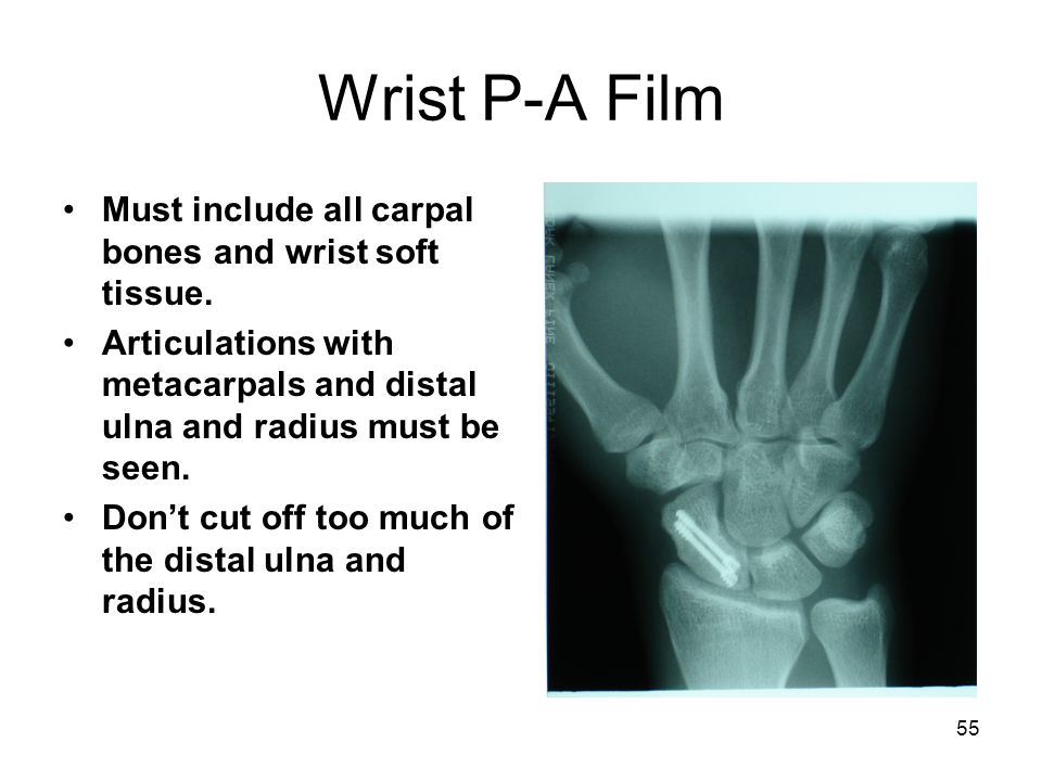 55 Wrist P-A Film Must include all carpal bones and wrist soft tissue. Articulations with metacarpals and distal ulna and radius must be seen. Don't c