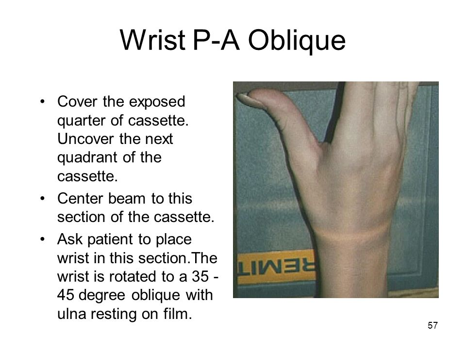 57 Wrist P-A Oblique Cover the exposed quarter of cassette. Uncover the next quadrant of the cassette. Center beam to this section of the cassette. As