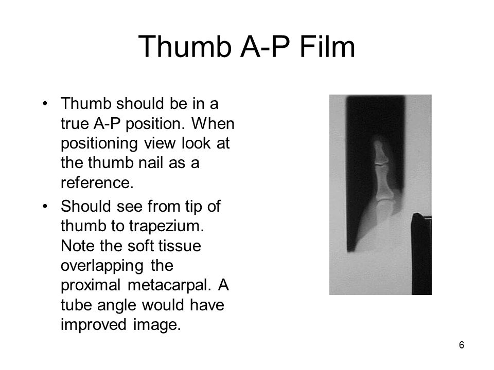 6 Thumb A-P Film Thumb should be in a true A-P position. When positioning view look at the thumb nail as a reference. Should see from tip of thumb to