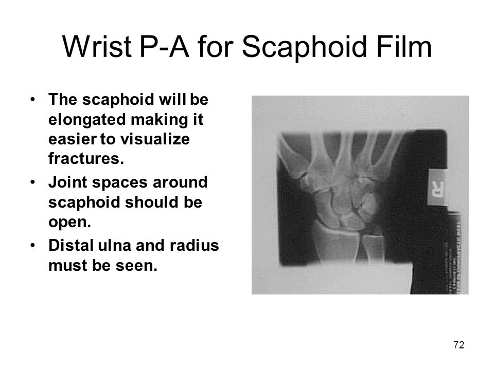 72 Wrist P-A for Scaphoid Film The scaphoid will be elongated making it easier to visualize fractures. Joint spaces around scaphoid should be open. Di