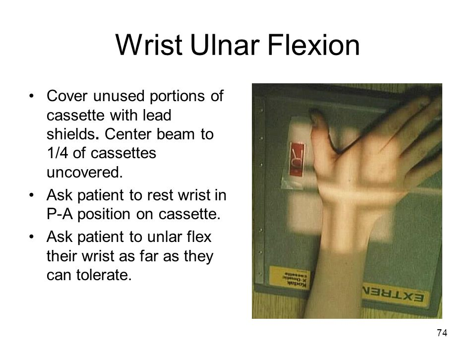 74 Wrist Ulnar Flexion Cover unused portions of cassette with lead shields. Center beam to 1/4 of cassettes uncovered. Ask patient to rest wrist in P-