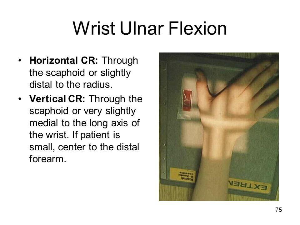 75 Wrist Ulnar Flexion Horizontal CR: Through the scaphoid or slightly distal to the radius. Vertical CR: Through the scaphoid or very slightly medial