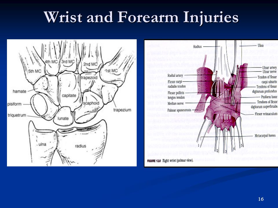 15 Contusions of the elbow blows to the elbow are common blows to the elbow are common majority result in temporary symptoms majority result in tempor