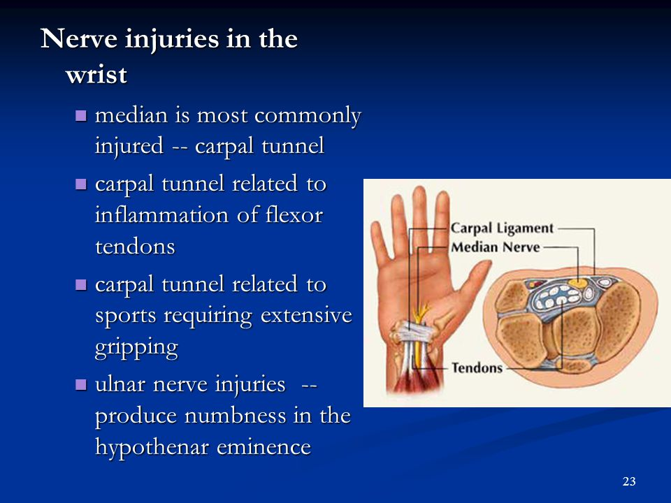 Wrist Sprains and Dislocations Wrist Sprains and Dislocations Mechanism is typically hyperextension, similar mechanism to fractures Mechanism is typic