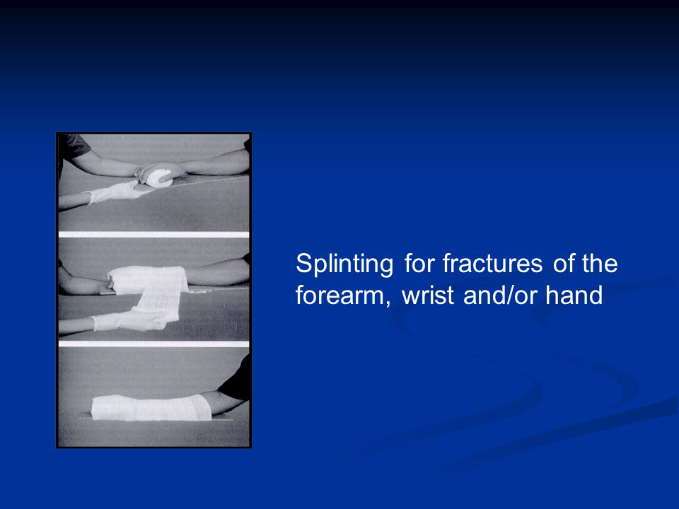 31 Anatomy of the Finger Tendons