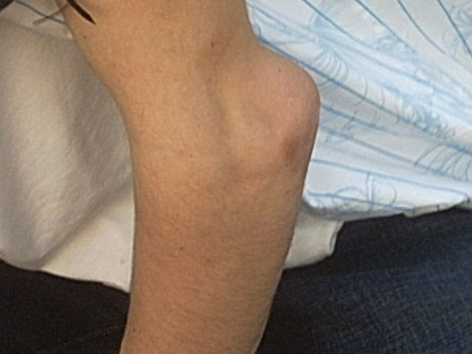 8 Elbow Dislocation Mechanism for this injury includes falling either on a flexed or fully extended arm -- deformity is usually obvious
