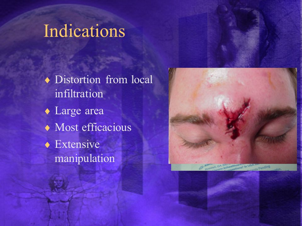 Indications  Distortion from local infiltration  Large area  Most efficacious  Extensive manipulation