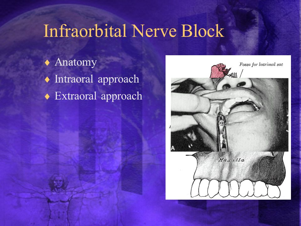 Infraorbital Nerve Block  Anatomy  Intraoral approach  Extraoral approach
