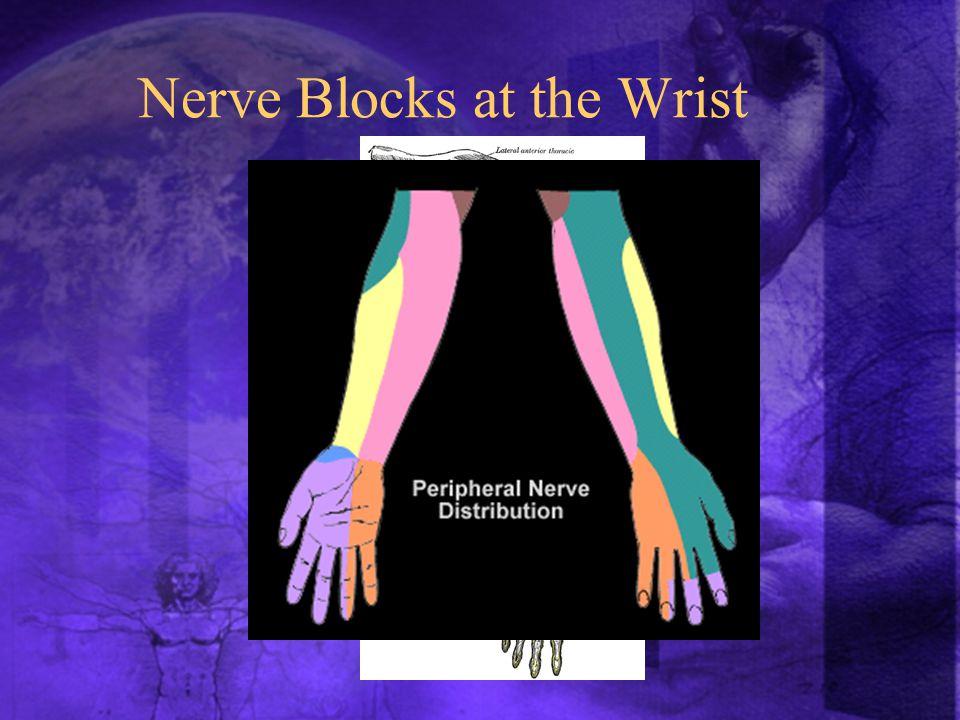 Nerve Blocks at the Wrist