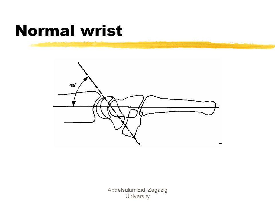 Abdelsalam Eid, Zagazig University Normal wrist