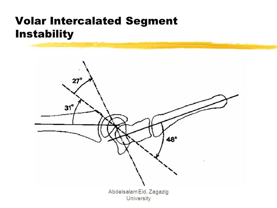 Abdelsalam Eid, Zagazig University Volar Intercalated Segment Instability