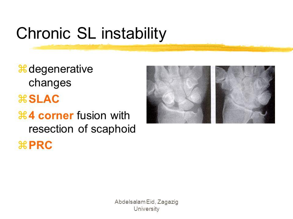 Chronic SL instability zdegenerative changes zSLAC z4 corner fusion with resection of scaphoid zPRC Abdelsalam Eid, Zagazig University
