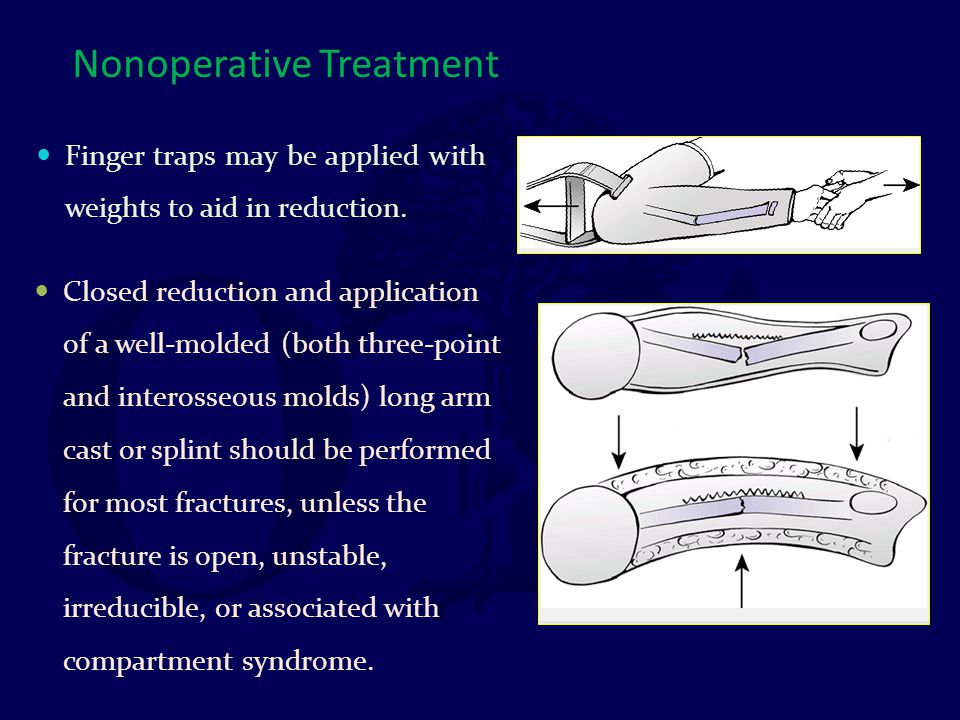 Nonoperative Treatment Closed reduction and application of a well-molded (both three-point and interosseous molds) long arm cast or splint should be p