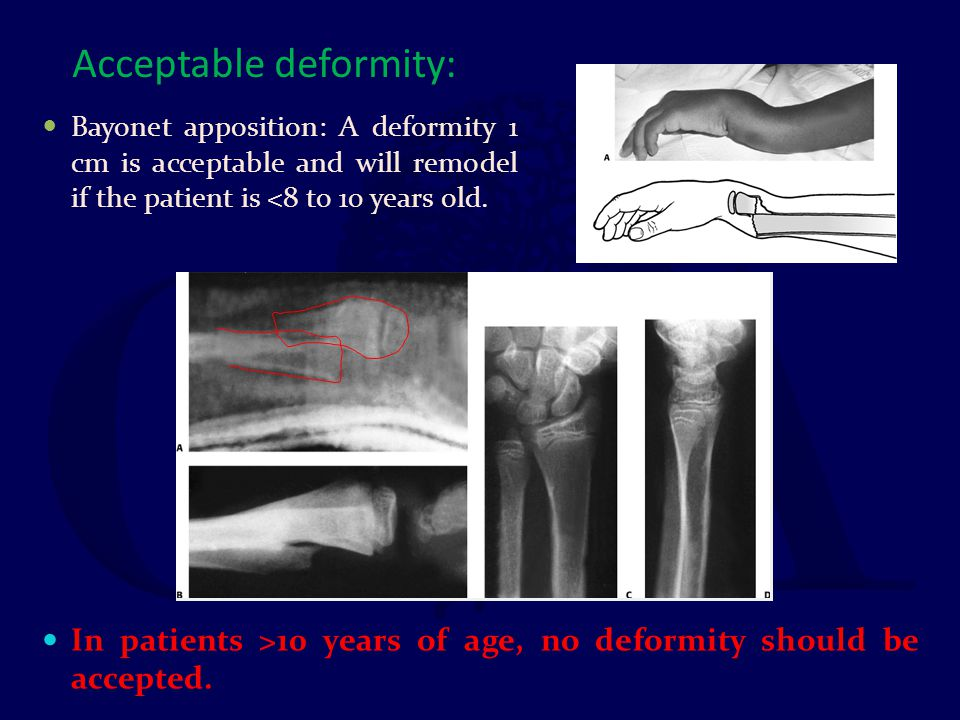 Acceptable deformity: Bayonet apposition: A deformity 1 cm is acceptable and will remodel if the patient is <8 to 10 years old. In patients >10 years