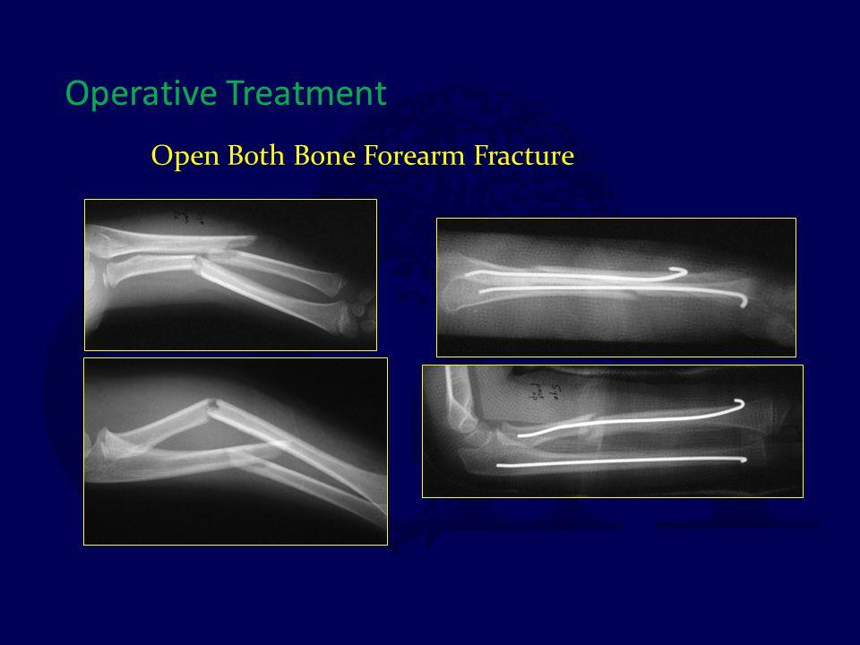 Open Both Bone Forearm Fracture Operative Treatment