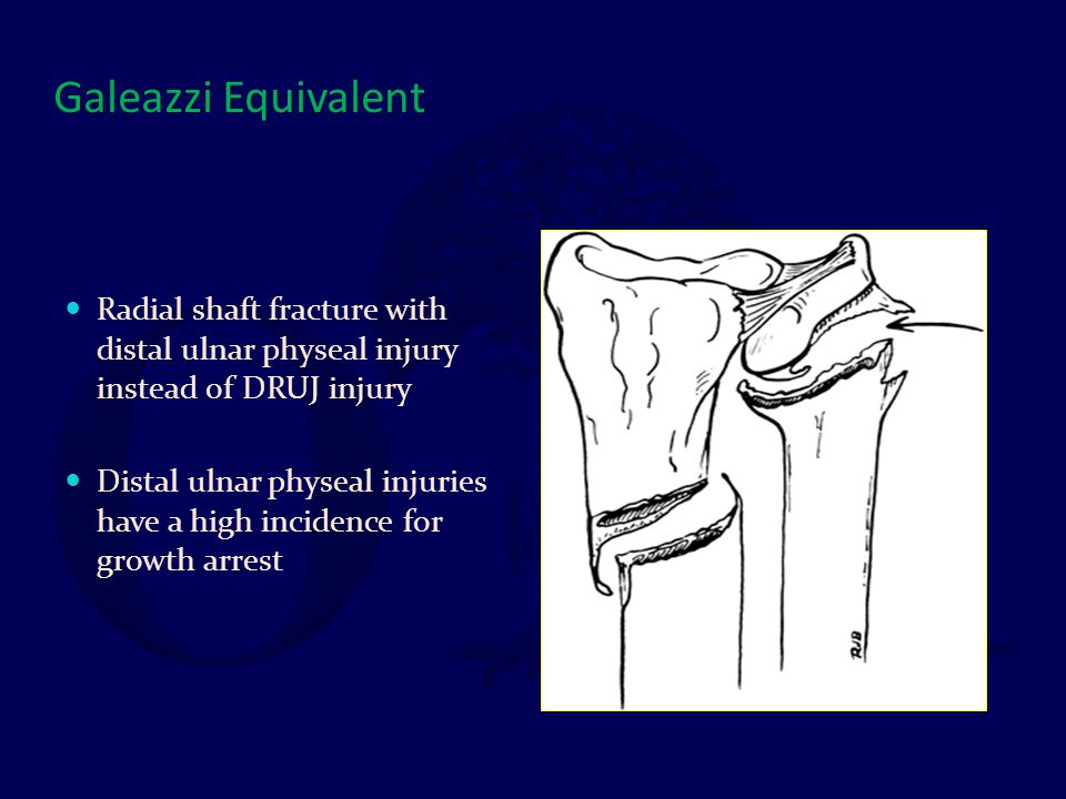 Galeazzi Equivalent Radial shaft fracture with distal ulnar physeal injury instead of DRUJ injury Distal ulnar physeal injuries have a high incidence