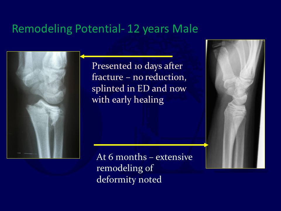 Remodeling Potential- 12 years Male Presented 10 days after fracture – no reduction, splinted in ED and now with early healing At 6 months – extensive