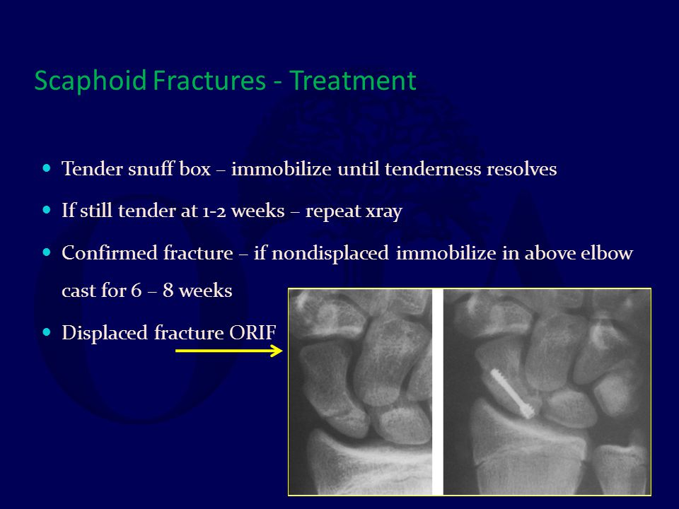 Scaphoid Fractures - Treatment Tender snuff box – immobilize until tenderness resolves If still tender at 1-2 weeks – repeat xray Confirmed fracture –