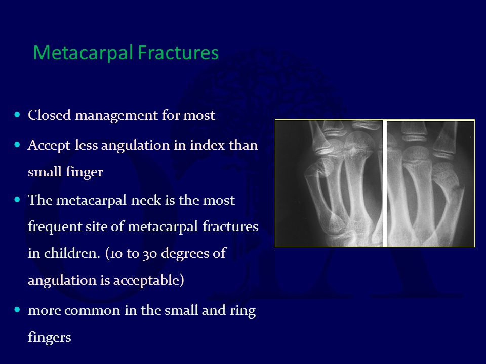 Metacarpal Fractures Closed management for most Accept less angulation in index than small finger The metacarpal neck is the most frequent site of met