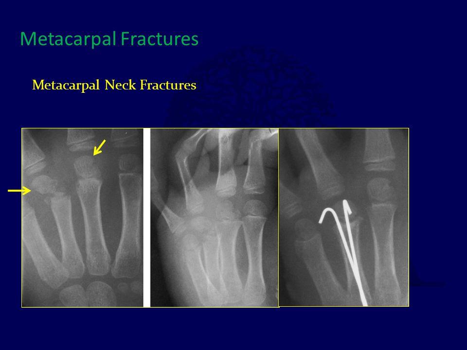 Metacarpal Fractures Metacarpal Neck Fractures